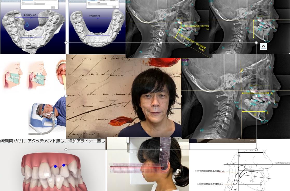 <無料視聴版>呼吸と気道を中心とした矯正BSFT(Breath-Swallow Functional Therapy)イントロダクション